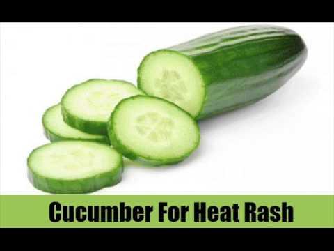 8 Top Natural Heat Rash Remedies