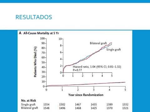 CRM con simple vs doble mamaria interna. Dr. Agustín Indavere. Residencia de Cardiología. Hospital C. Argerich. Buenos Aires