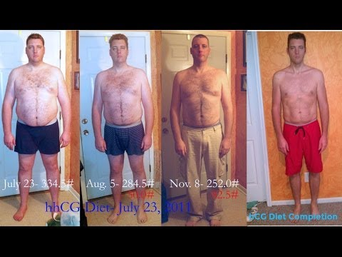 Men and the hCG Diet: This Guy Lost 110lbs - Live Interview