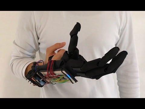 Youbionic : يد روبوتية يمكنها تأدية الوظائف الأساسية لليد البشرية