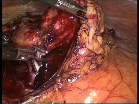 laparoscopic left adrenalectomy