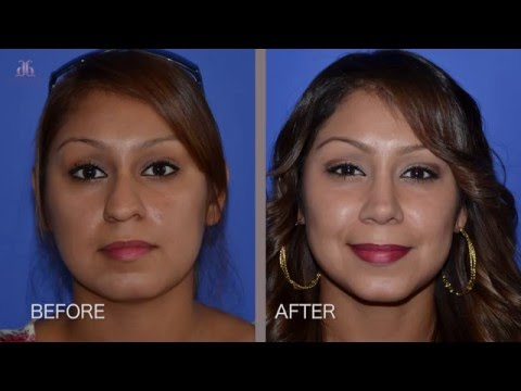 Plastic Surgery Miracle - Rhinoplasty Patient Experience by Dr. Ghavami
