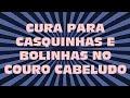 CASQUINHAS E BOLINHAS NO COURO CABELUDO , COMO ELIMINAR DE UMA VEZ !