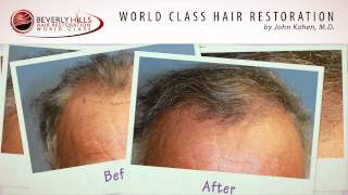 Hair Transplant Before And After Results Video BHHR Clinic-Beverly Hills, CA www.bhhr.com