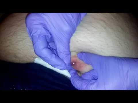 Epic Pimple Pop Infection
