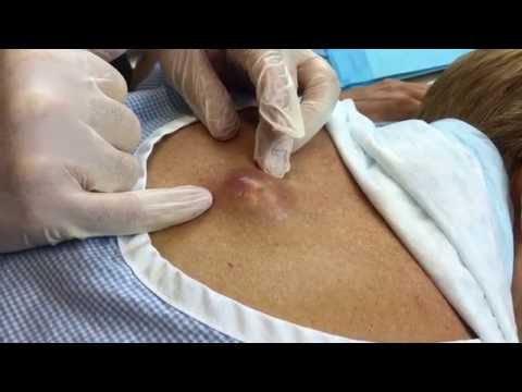 Dr. Geoff Butler: Infected Cyst on Back