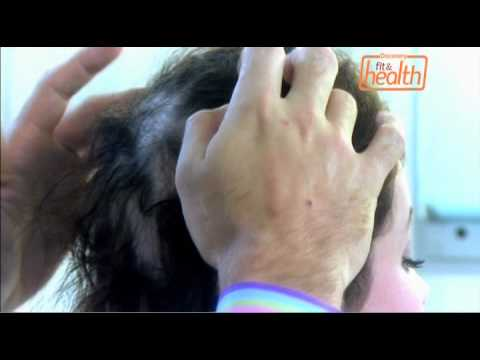 Hair Loss | Embarrassing Bodies