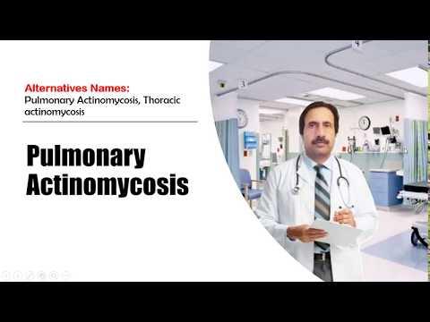 Pulmonary Actinomycosis : Causes, Diagnosis, Symptoms, Treatment, Prognosis