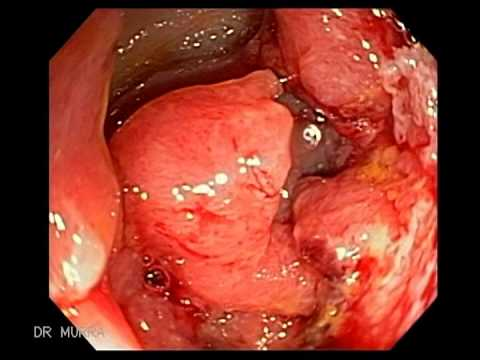 Colo Rectal - Colorectal cancer (also called cancer of the bowel or bowel cancer). Most cases occur in people aged over 50. If colorectal cancer is diagnosed at an early s...
