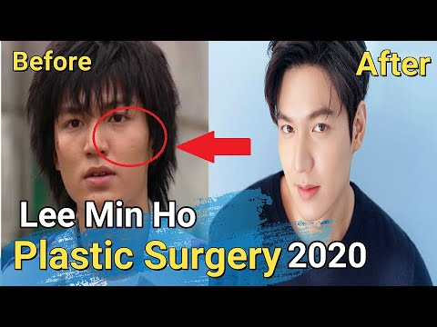 Lee Min Ho ll Before and After Plastic Surgery ll English Sub
