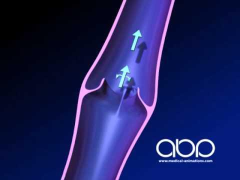Leg Vein Valve - Abnormal - 3D Animation || ABP ©