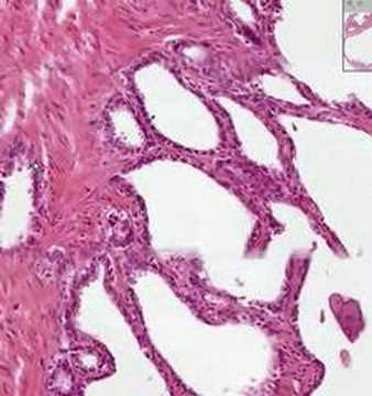 Shotgun Histology Seminal Vesicles. Length: 4:15; Rating Average: 5.0'