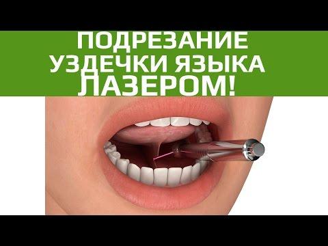Подрезание уздечки языка и губы