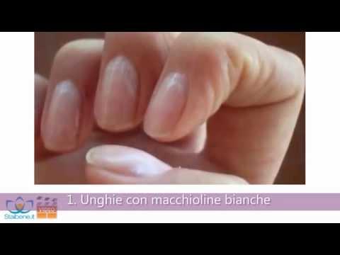 4 tipi di unghie che rivelano il tuo stato di salute