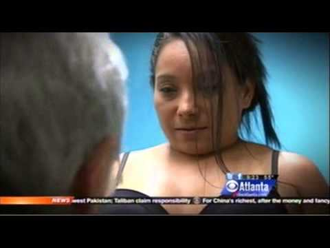 Atlanta SmartLipo Laser Liposuction Procedure | Part I: Dr. Jay Kulkin WIFH on CBS Atlanta WGCL