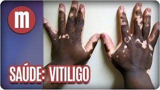 Saúde: Vitiligo