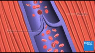 How deep vein thrombosis (DVT) forms