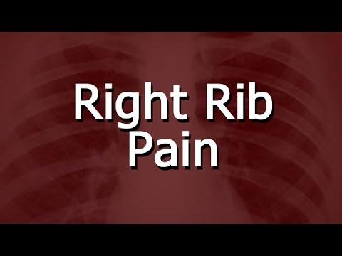 Right Rib Pain