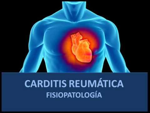 Carditis reumática – Fisiopatología