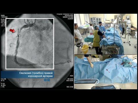 Баллонная ангиопластика и стентирование правой коронарной артерии
