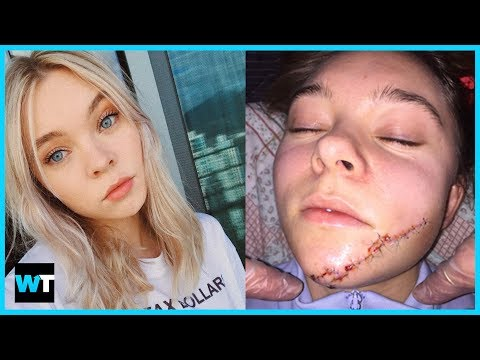 Taylor Hickson Sues Over GRUESOME Facial Injury | What's Trending Now!