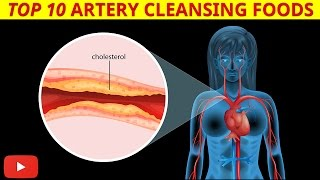Video ►Top 10 Artery Cleansing Foods [Clinically Proven] - by Dr Sam Robbins MP3, 3GP, MP4, WEBM, AVI, FLV Juni 2019