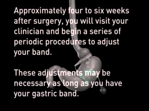 Lap Band Surgery – Laparoscopic Gastric Banding – Animation – Bariatric Weight Loss Solutions