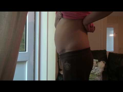 28 weeks pregnant after tummy tuck
