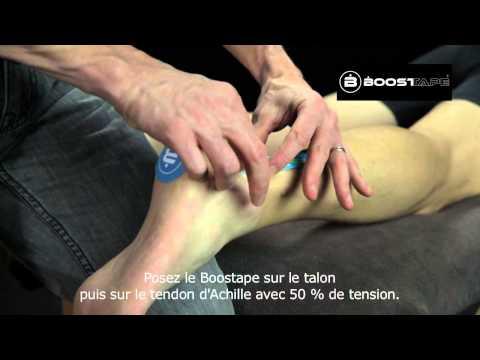 comment renforcer ses tendons d'achille