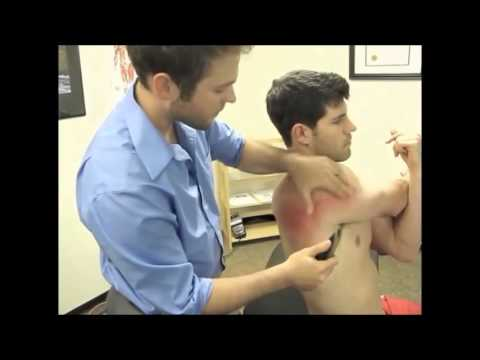 gratis download video - Frozen-Shoulder-Rehabilitation-Using-Gua-Sha