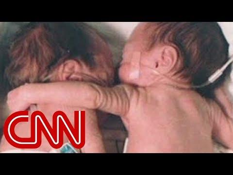 Tuż po porodzie siostra otacza ramieniem swoją umierającą bliźniaczkę! Lekarze nie mogli uwierzyć!
