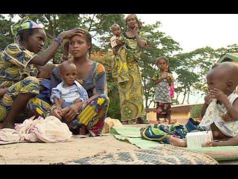 الكاميرون: أطفال يعانون من سوء التغذية