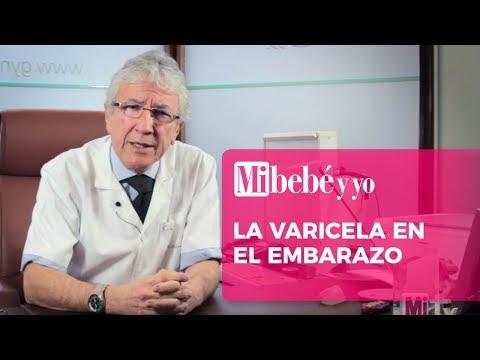 La varicela en el embarazo