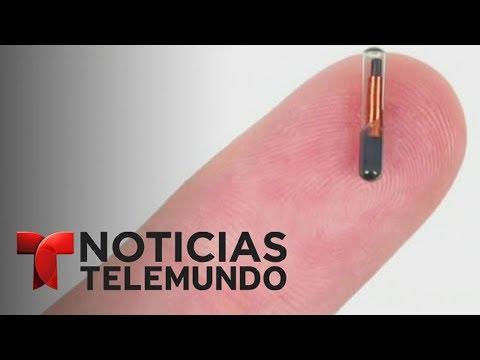 Implantan microchips a empleados de una empresa en Wisconsin   Noticiero   Noticias Telemundo