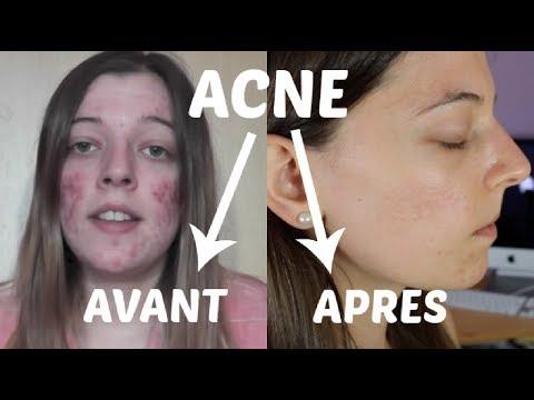 comment soigner l'acné visage