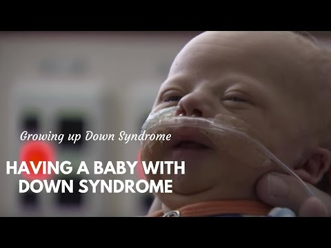 Watch video Raising a baby with Down Syndrome