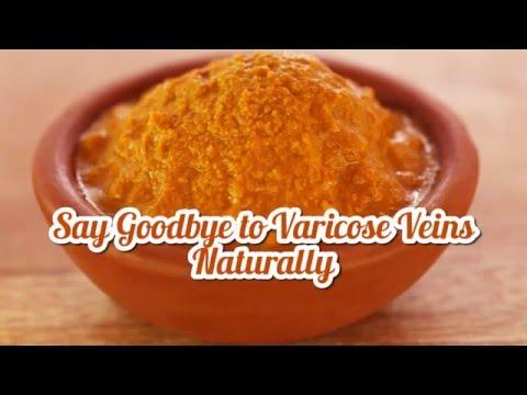 Say Goodbye to Varicose Veins Naturally