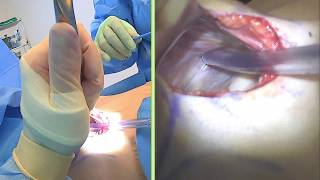 Breast Implant Exchange, Silicone Gel Implants: Live Streaming Plastic Surgery: Dr Michael  Brown