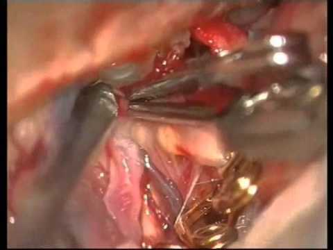 Previously Coiled Aneurysms Microsurgery - Experience on group of 81 patients - Video 4