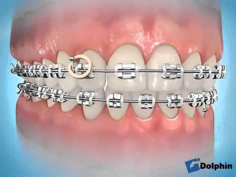 Vidéo élastique inter maxillaire transverses