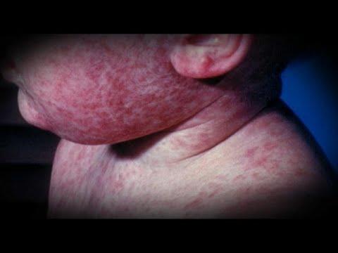 Συναγερμός για την ιλαρά στην Ευρώπη το 2018