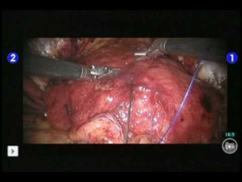 Suprapubic Catheter Placement at the Time of Robotic Radical Prostatectomy