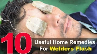 Nonton Top 10 Home Remedies To Treat Welder S Flash   Eye Pain Home Remedies Film Subtitle Indonesia Streaming Movie Download
