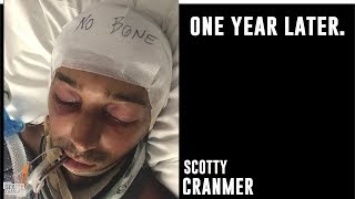 Video 1 YEAR SINCE MY LIFE CHANGING ACCIDENT! MP3, 3GP, MP4, WEBM, AVI, FLV Juli 2018