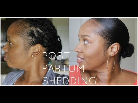 Post Partum Shedding on Natural Hair: How to Survive