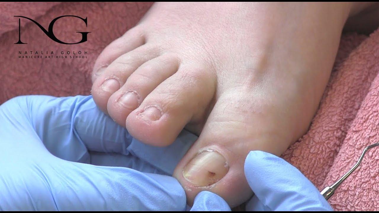 Маникюр. Смотреть онлайн: Коррекция вросшего ногтя. / Correction of ingrown nail and tamponade.