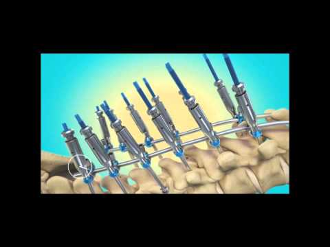 Kyphosis - Surgical Correction with Instrumentation
