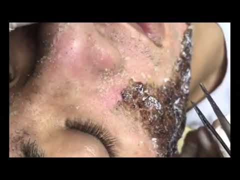 Chemical Peel Result After Treatment - Face Peel for Acne Part 1 (22 August 2019)