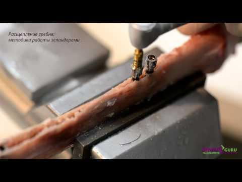 Расщепление гребня: методика работы эспандерами
