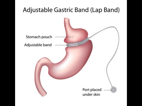 What Is Gastric Bypass or Weight Loss Surgery? Lap-Band, Gastric Sleeve and Roux-en-Y – Dr. Mache